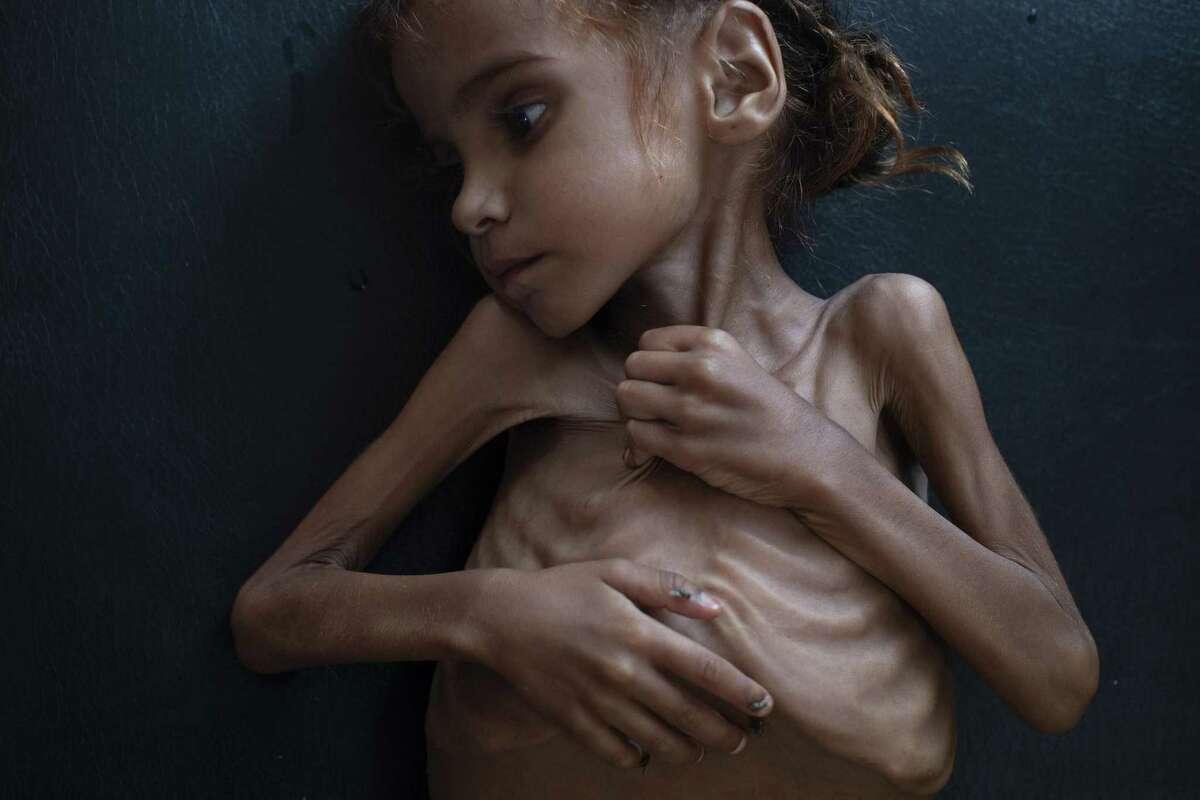 Amal Hussain, 7, lies in a UNICEF-run clinic in Aslam, Yemen.