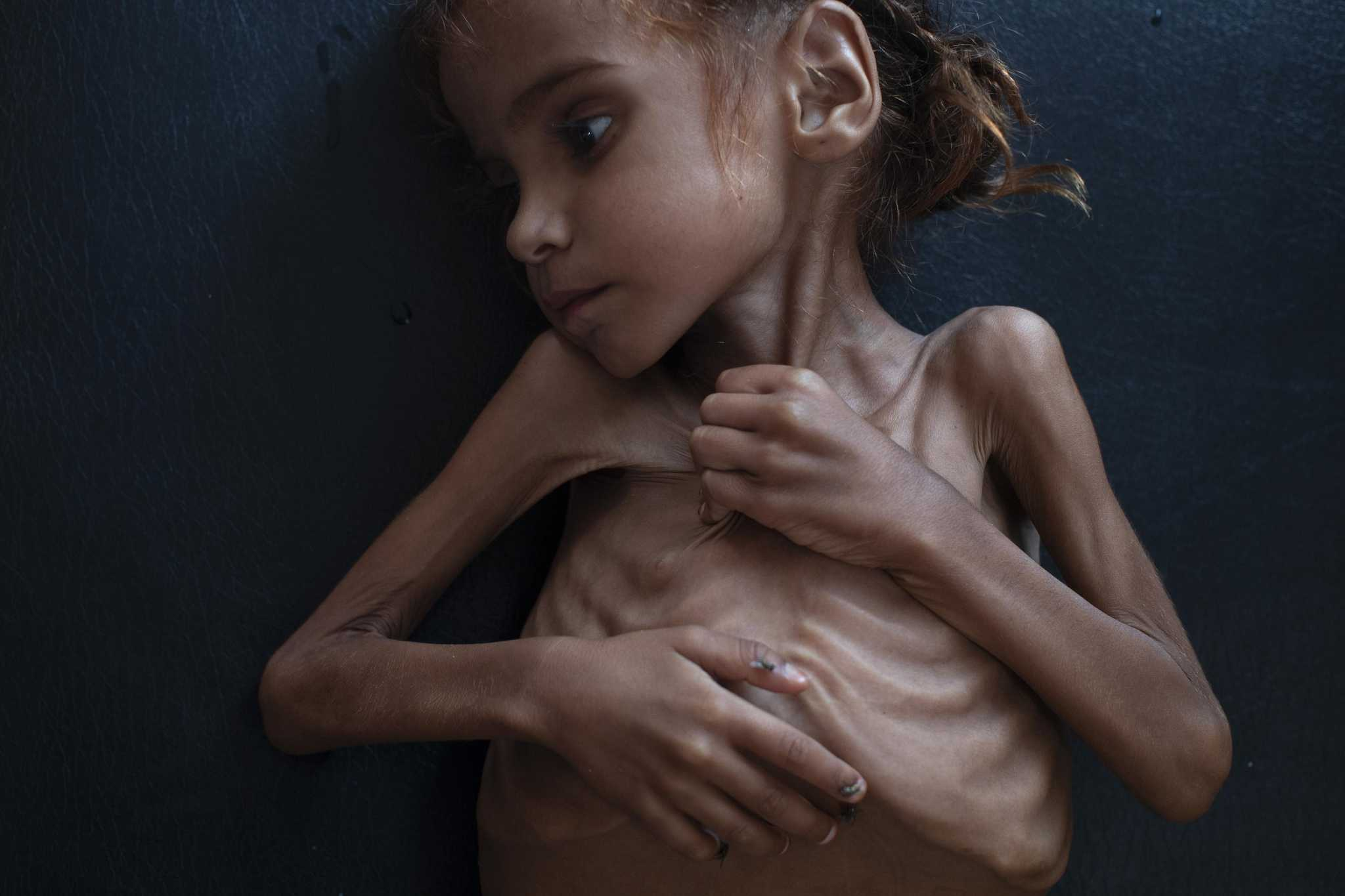 This photo should open your eyes to American sins in Yemen [Editorial]