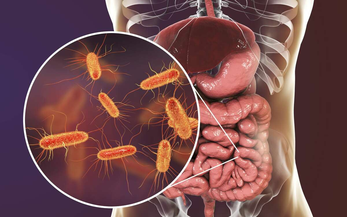 FILE-- Intestinal microbiome, 3D illustration showing anatomy of human digestive system and enteric bacteria Escherichia coli, E. coli, colonizing jejunum, ileum, other parts of intestine. Gut normal flora.