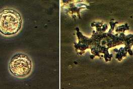 A sample of the brain-eating amoeba called Balamuthia mandrillaris.