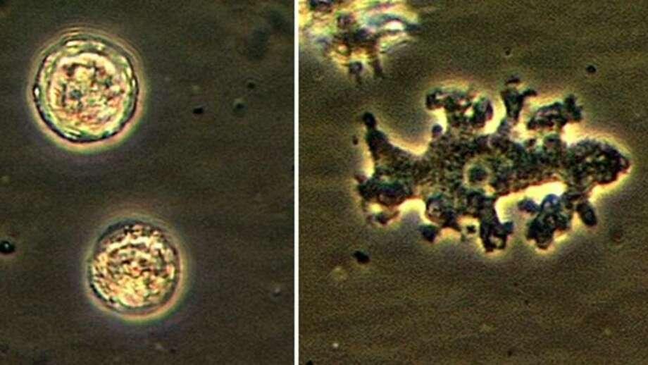 A sample of the brain-eating amoeba called Balamuthia mandrillaris. Photo: Courtesy CDC