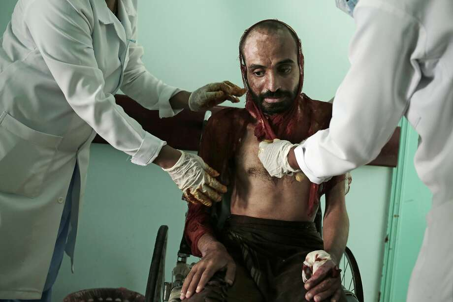 Nurses tend to severe burns covering Monir al-Sharqi, at a hospital in Marib. His family said the lab technician was tortured by Houthi rebels, who doused him with acid and dumped him in a stream. Photo: Nariman El-Mofty / Associated Press