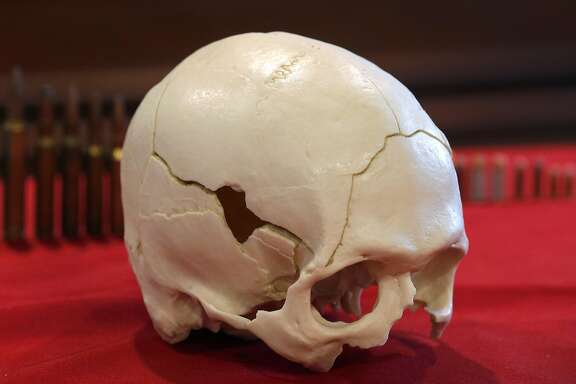 """A plastic cast of a gunshot victim's skull is displayed at pathologist Dr. Judy Melinek's office in San Francisco, Calif. on Tuesday, Nov. 13, 2018. Dr. Melinek's response to an NRA comment that doctors should """"stay in their lane"""" regarding gun violence went viral after she tweeted it on Friday."""