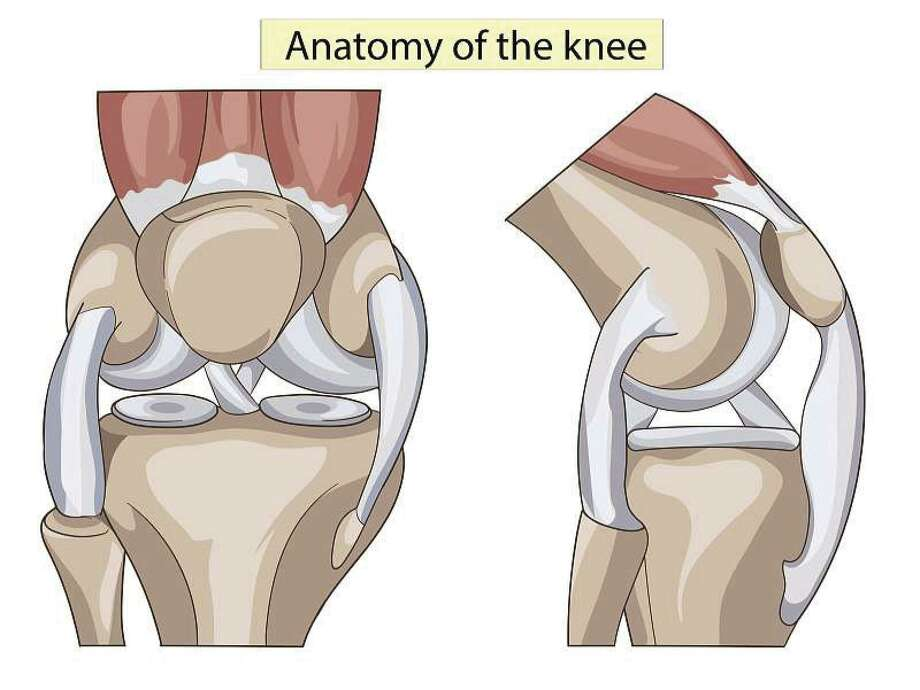 The surgery may be considered for someone who has severe arthritis or a severe knee injury.