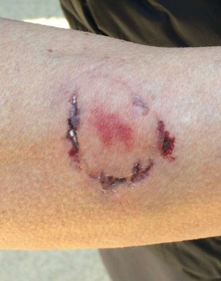 A woman was bitten by a dog owner on Thursday morning at Anthony Chabot Regional Park after she allegedly pepper sprayed one of the suspect's pets, according to the East Bay Regional Park District Police Department. Photo: East Bay Regional Park District