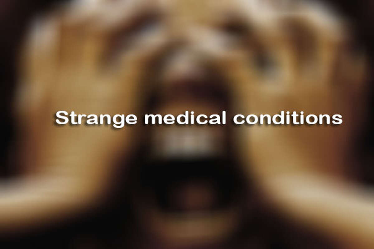 Click through for a look at the strangest medical conditions>>>